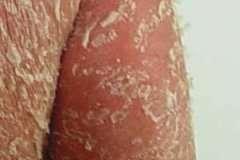 引起银屑病的病因是什