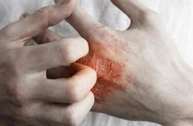 银屑病治疗注意什么
