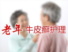 老年人患上银屑病的症状有哪些