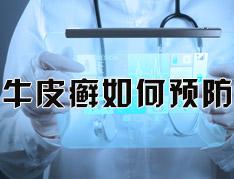 生活中怎么预防银屑病